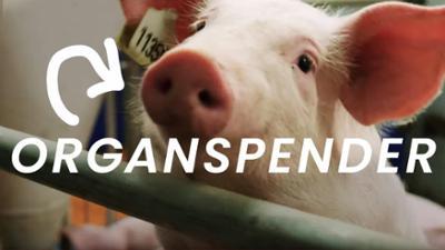 beta stories: Xenotransplantation - Wie Schweine zum Organspender für Menschen werden (S01/E02)