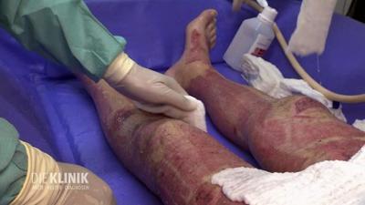 Die Klinik - Ärzte, Helfer, Diagnosen: Nach Explosion: Schwere Verbrennungen am ganzen Körper